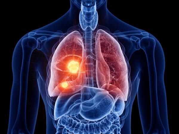 Informationen zu den Anbietern einer Pflegezusatzversicherung bei Erkrankungen der Inneren Organe