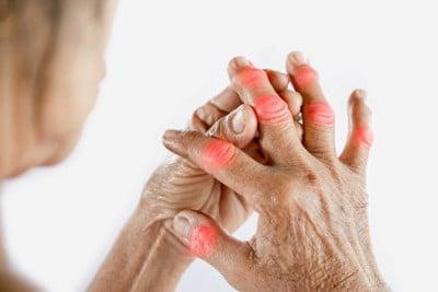 Informationen zu den Anbietern einer privaten Pflegezusatzversicherung, welche auch einer Arthritis die gewünschte Pflegeabsicherung bieten.